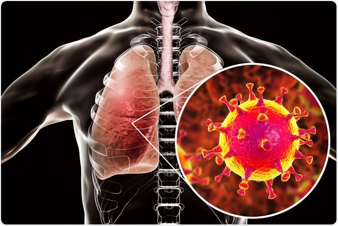 MERS virus, Middle-East Respiratory Syndrome coronavirus in human lungs, 3D illustration - Image Credit: Kateryna Kon/ Shutterstock
