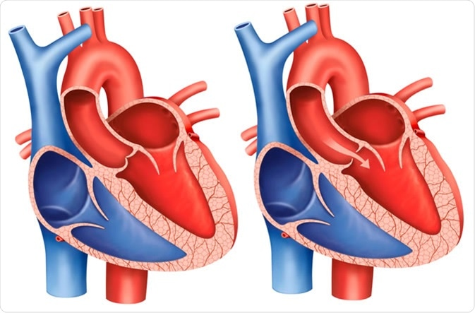 Descriptive illustration of aortic valve stenosis, the main artery that carries blood out of the heart, the aortic valve does not open completely and decreases blood flow from the heart. - Illustration Credit: ilusmedical / Shutterstock