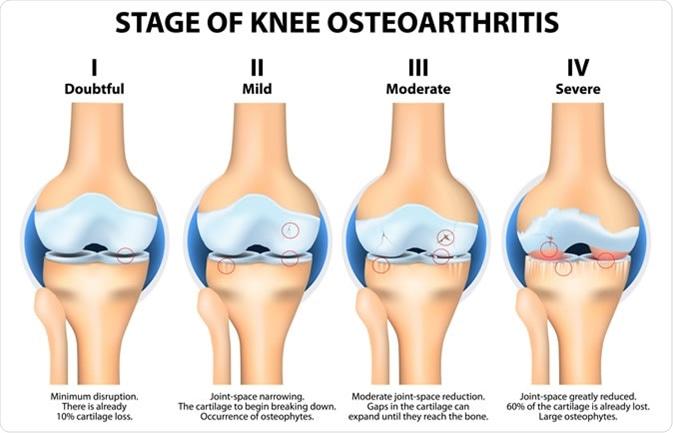 Stages of knee Osteoarthritis (OA). Image Credit: Designua / Shutterstock