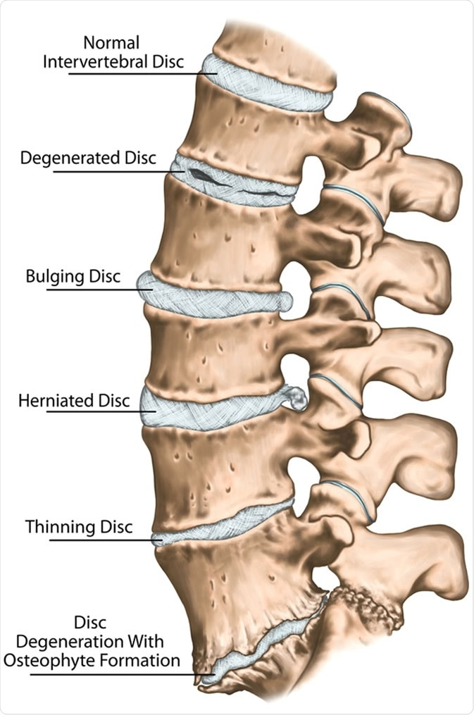 Spine disc problems, degenerative lumbar disc disease, degenerative disc disorder, degenerated disk, bulging disk, herniated disk, thinning disk, disk degeneration with osteophyte formation - Image Credit: Stihii / Shutterstock
