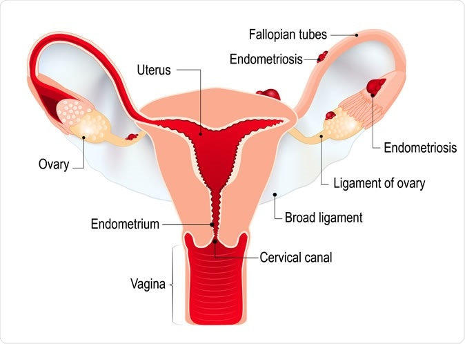 Endometriosis. Illustration Credit: Designua / Shutterstock
