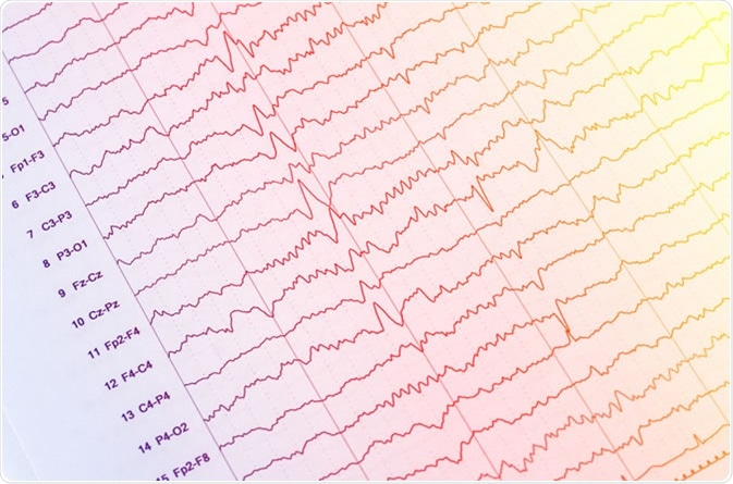 EEG - electroencephalogram output - Image Credit: Chaikom / Shutterstock