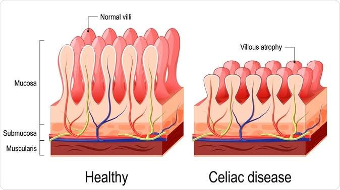 Celiac disease. Normal villi and villous atrophy. Image Credit: Designua / Shutterstock