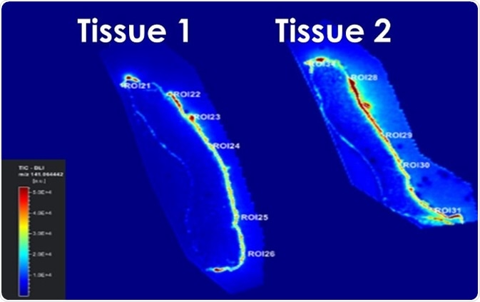 Sections of Labskin treated with Terbinafine without (Tissue 1) or with (Tissue 2) a penetration enhancer
