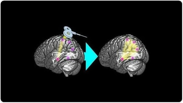 Brain stimulation increases functional connectivity of memory network