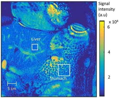 Researchers develop revolutionary method using MRI to diagnose digestive disorder