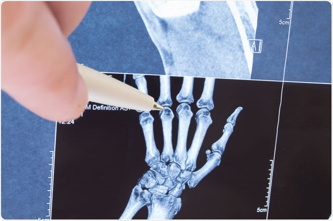 No studies have assessed the effect of methotrexate (MTX) in osteoarthritis of the hand (HOA). The purpose of this study was to examine the effect of MTX on pain and structural progression in symptomatic erosive HOA (EHOA). Image Credit:  Shidlovski / Shutterstock