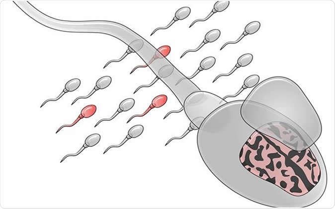Illustration of sperm mosaicism, mutated sperm are depicted in red. Credit: UC San Diego Health Sciences