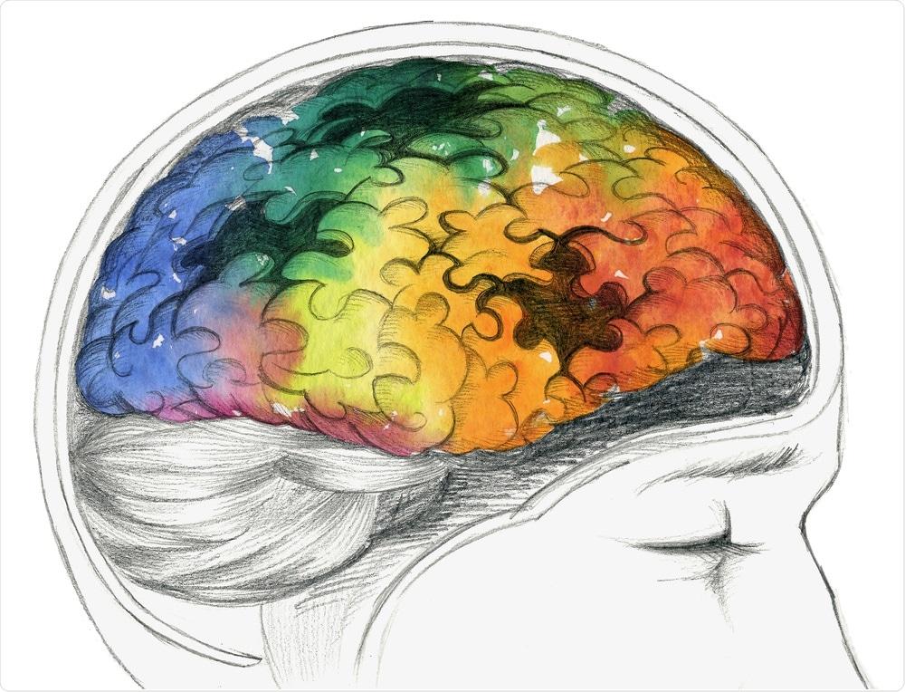 Brain - alzheimer's