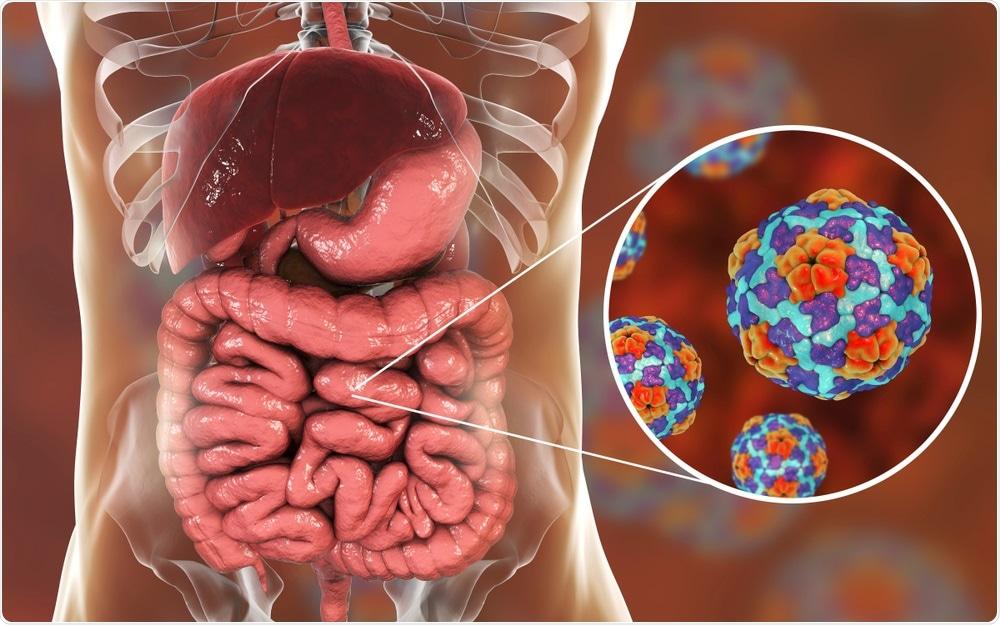 Enterovirus infection - an illustration