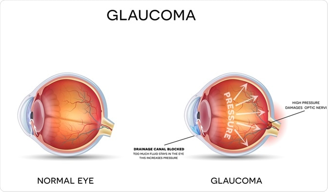Health eye versus eye with glaucoma