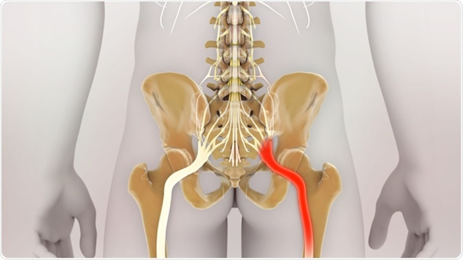 Douleur du nerf sciatique. Crédit d'image: Nathan Devery / Shutterstock