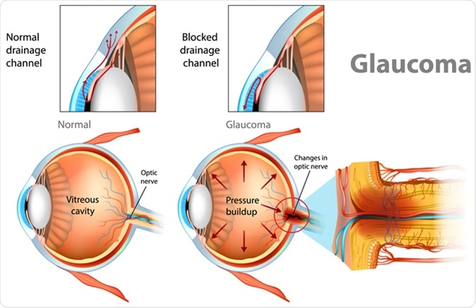 Glaucoma. Illustration showing open-angle glaucoma. Intraocular pressure in the back of the eye. Image Credit: Sakurra / Shutterstock