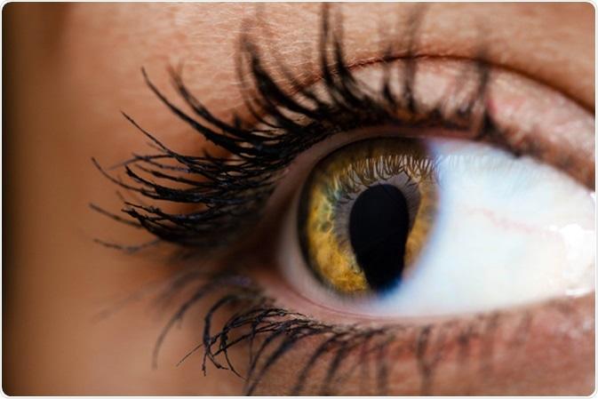 Female eye with Coloboma or cat eye. Image Credit: Shvaygert Ekaterina.