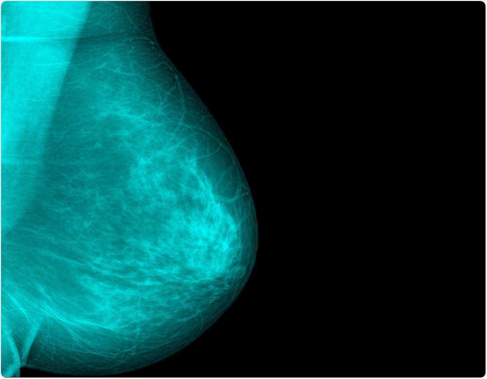 Breast density will be used to determine breast cancer risk, under the new regulations