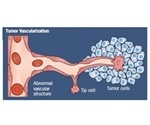 Researching Angiogenesis in Cancer