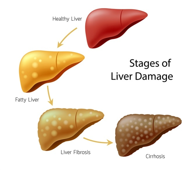 Stages of liver damage. Healthy, fatty, liver fibrosis and Cirrhosis. Image Credit: Shutterstock
