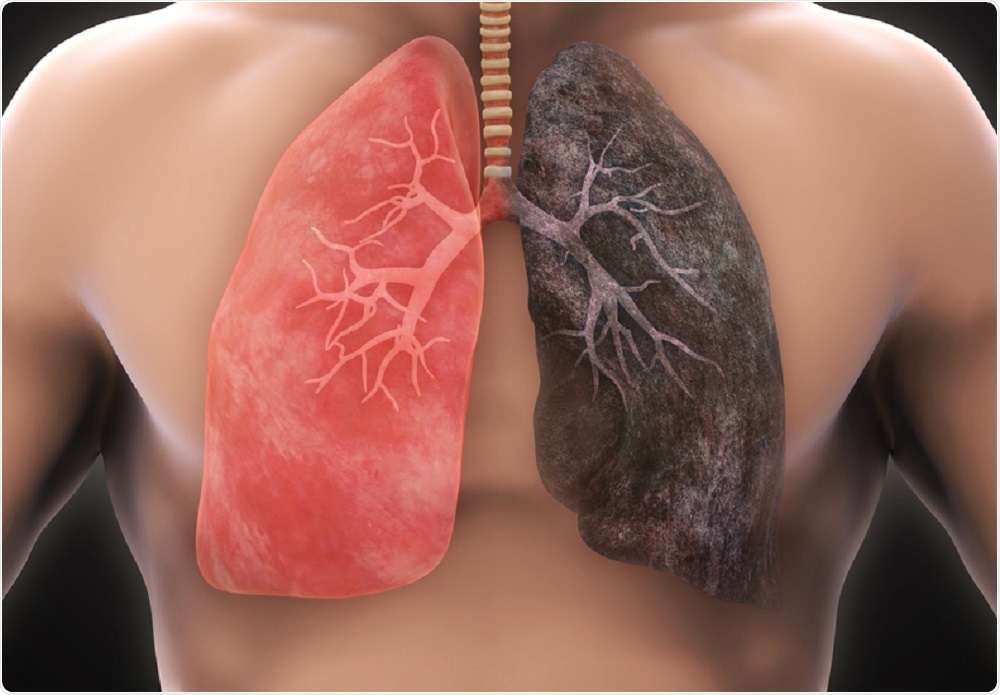 Healthy lung and lung with cancer