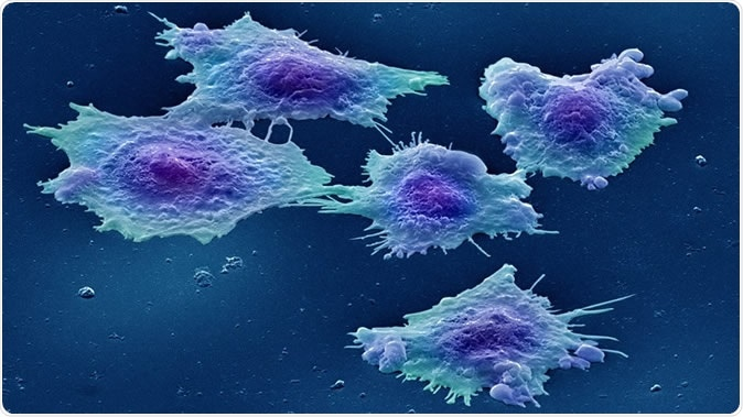 Image: Colour-enhanced image of human colon cancer cells in culture. Credit: Annie Cavanagh. License: (CC BY 4.0)