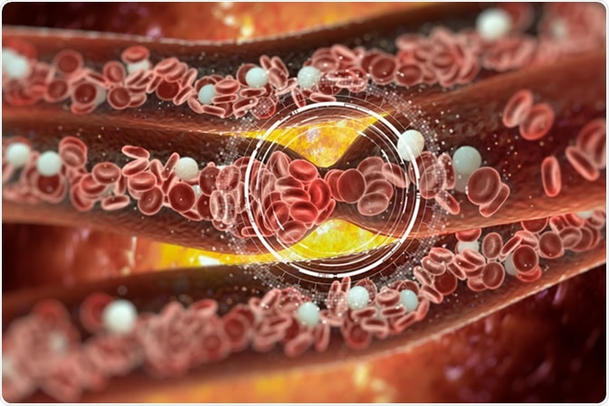 Blood Clotting Illustration. Credit: Vitstudio / Shutterstock