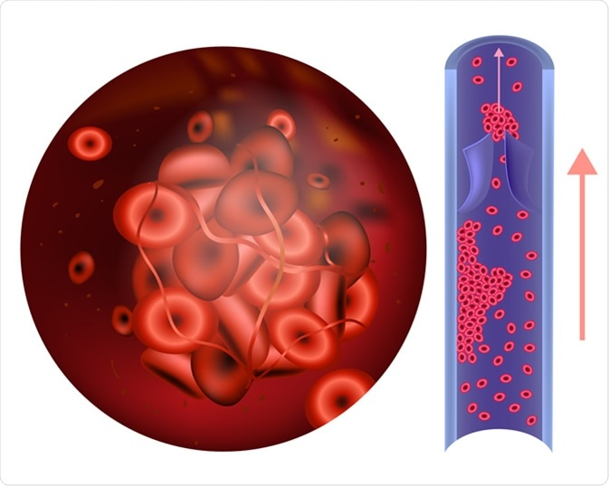 Prothrombin thrombophilia. (sometimes hypercoagulability or a prothrombotic state) Image Credit: Sakurra / Shutterstock