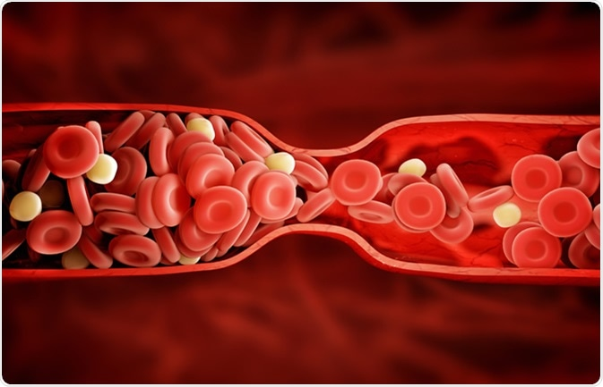 Factor V Leiden results in thrombophilia, a blood clotting condition that increases a person's risk of developing abnormal blood clots. Image Credit: Adike / Shutterstock
