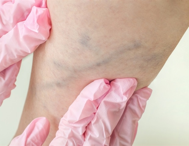 Research could offer new hope for the prevention, treatment of deep vein thrombosis