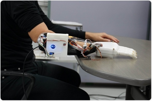 Scientists develop new 3D-printed prosthetic hand that can learn wearers' basic motions