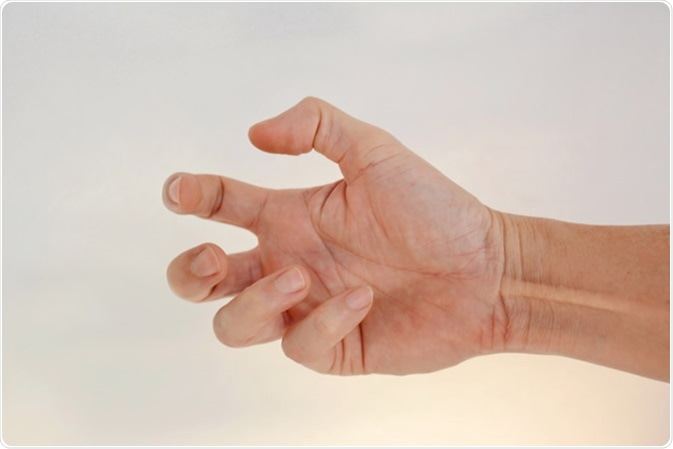 Hands of people with contractile dystonia - Image Credit: justvisarut / Shutterstock