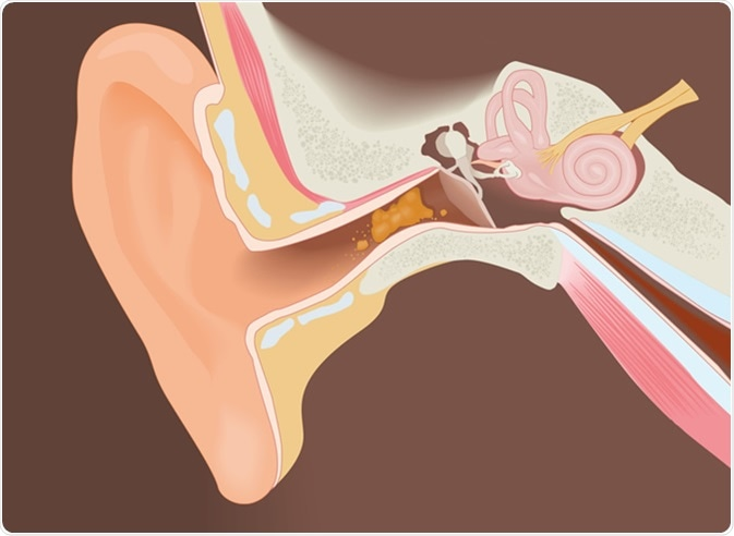 Section of the ear with earwax, diagram. Image Credit: struna / Shutterstock