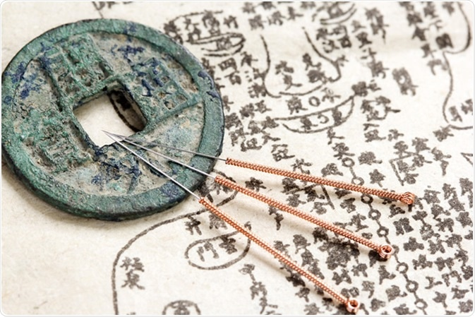 Acupuncture needles and ancient medicine illustration showing acupuncture points on human body - Image Credit: Pixeljoy / Shutterstock
