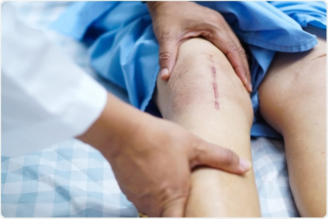 Patient scars from total knee joint replacement arthroplasty. Image Credit: Sasirin Pamai / Shutterstock