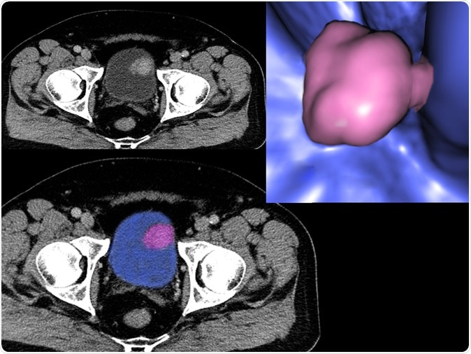 Bladder cancer, CT - Illustration Credit: Semnic / Shutterstock