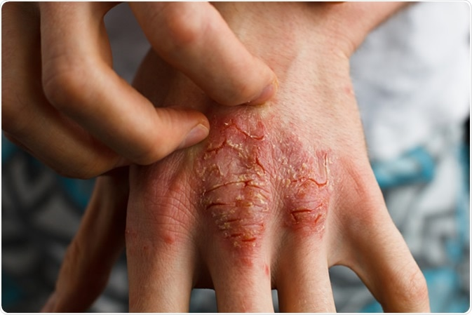 Dry flaky skin as a result of eczema. Image Credit: Ternavskaia Olga Alibec / Shutterstock
