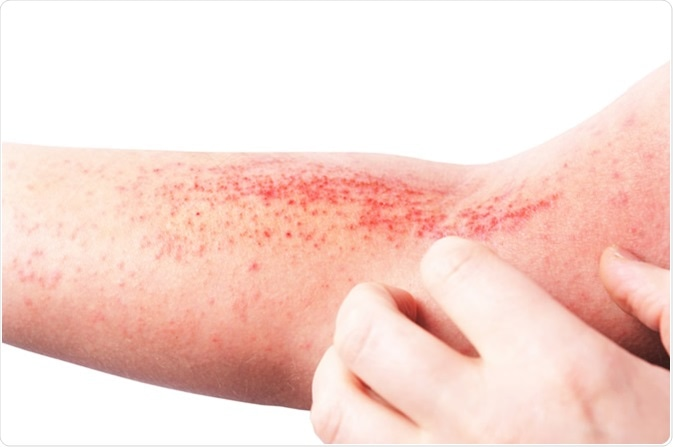 Atopic dermatitis (AD), also known as atopic eczema. Image Credit:  LIAL / Shutterstock