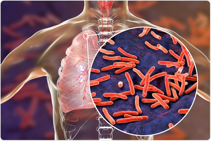 FDA approves effective new treatment for extremely drug-resistant tuberculosis