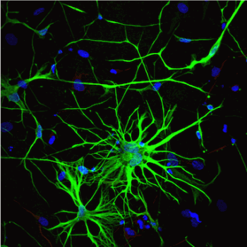 Human iPSC-Derived Astrocytes