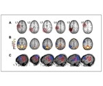 Structural and functional reorganization in the brain predicts language production