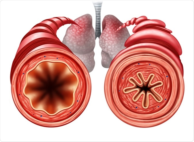 Asthma diagram as a healthy and unhealthy bronchial tube with a constricted breathing problem caused by respiratory muscle tightening. Image Credit: Lightspring / Shutterstock