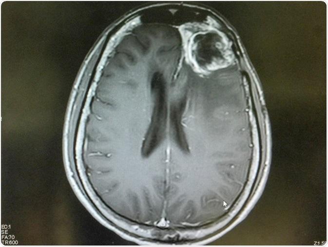 RNM cranioencefálica mostra gliblastoma frontal esquerdo.  Crédito de imagem: O_Akira / Shutterstock