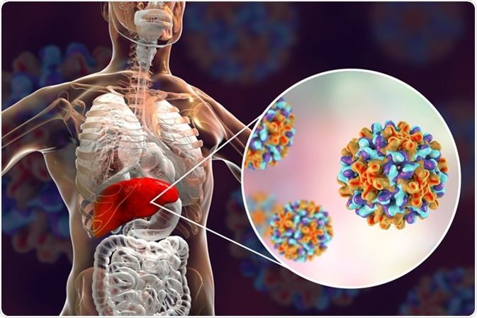 Liver with Hepatitis B infection highlighted inside human body and close-up view of Hepatitis B Viruses. Illustration Credit: Kateryna Kon / Shutterstock