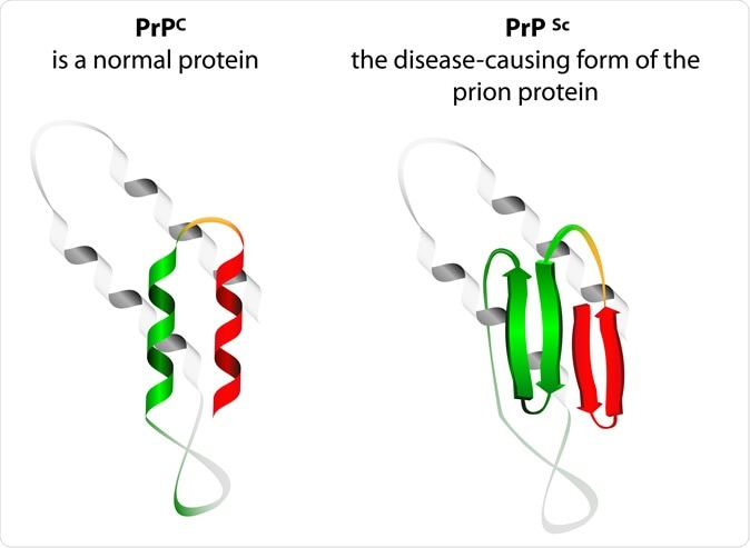 Prion an composed of protein in a misfolded form. Prions are responsible for the transmissible mad cow disease. Image Credit: Designua / Shutterstock