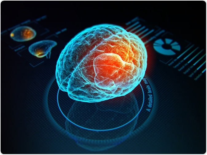 Neural interfaces, brain-computer interfaces and other devices that blur the lines between mind and machine have extraordinary potential. Image Credit: Iaremenko Sergii / Shutterstock