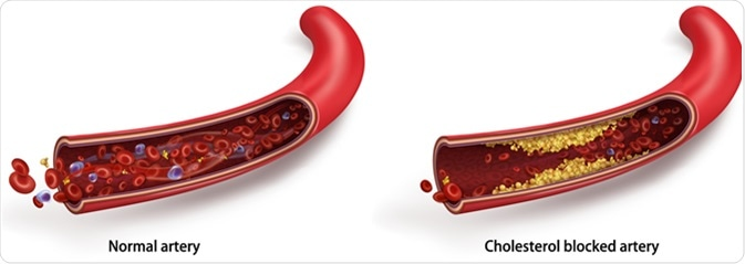 Normal blood flow. The accumulation of cholesterol in the blood vessels. Atherosclerotic plaque. Vector 3d illustration - Illustration Credit: Studiovin / Shutterstock