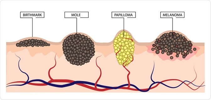 The difference between a birthmark, mole, papilloma and melanoma.  Illustration Credit: LiliiaKyrylenko / Shutterstock