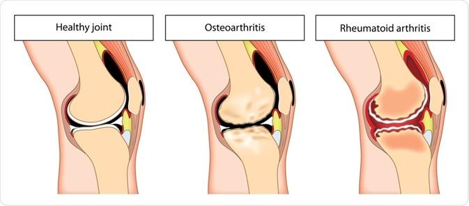 what is arthritis and osteoarthritis