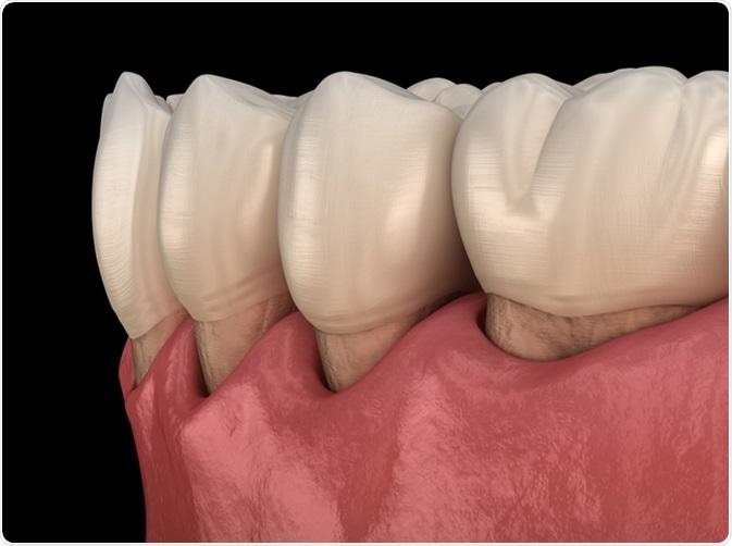 diagnóstico de hipersensibilidad a la dentina de diabetes