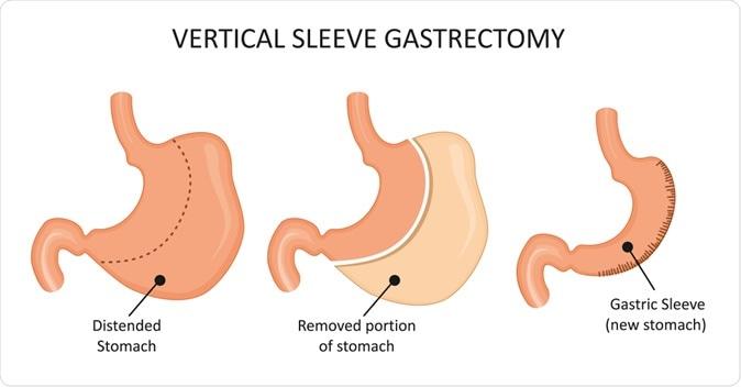 Cancer after gastric bypass, gastric - Traducere în engleză - exemple în română | Reverso Context