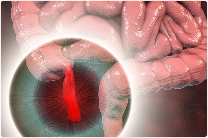 Acute appendicitis, 3D illustration showing inflamed appendix on the cecum. Image Credit: Kateryna Kon / Shutterstock
