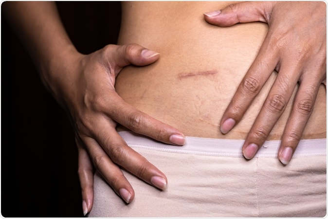 Patient Satisfaction And Quality Of Life Similar Across All Appendicitis Treatments